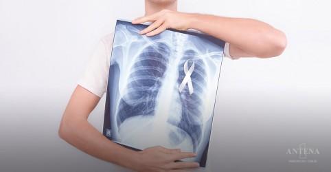 Inteligência Artificial pode ser usada para diagnosticar câncer de mama