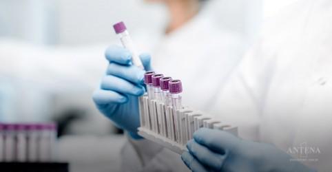 Placeholder - loading - Imagem da notícia Exame de sangue consegue detectar Alzheimer muito antes dos sintomas