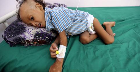 Mais de 80 mil crianças podem ter morrido de fome na guerra do Iêmen, diz ONG