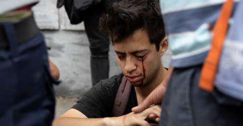 Placeholder - loading - Cegado por balas de borracha, estudante chileno se torna símbolo de protestos