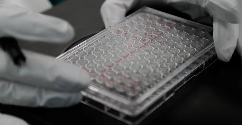 Placeholder - loading - Pesquisador de HIV diz que não contaria com vacina contra coronavírus tão cedo