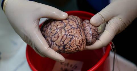 Placeholder - loading - Imagem da notícia Impacto da Covid em funções cognitivas pode equivaler a envelhecimento de 10 anos do cérebro, sugere estudo