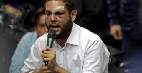 Placeholder - loading - Venezuela determina prisão de políticos oposicionistas após explosão de drones