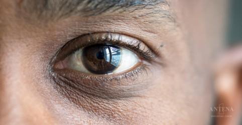 Nutrientes que auxiliam a manter a saúde ocular