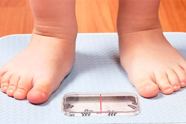 Diabetes tipo 2 está relacionada com obesidade infantil Background